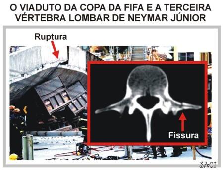 FISSURA-E-RUPTURA